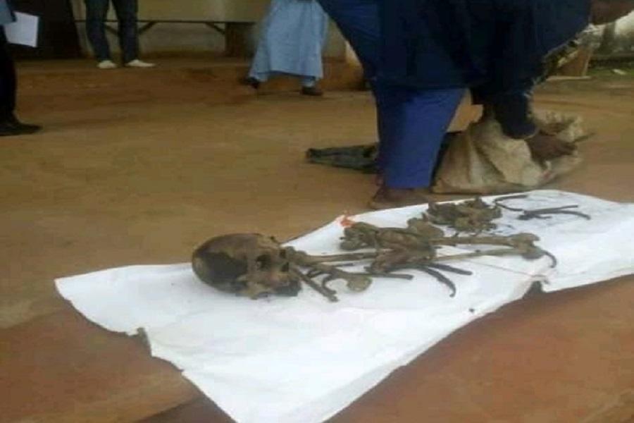 Cameroun : un jeune homme interpellé dans le Noun pour trafic d'ossement.